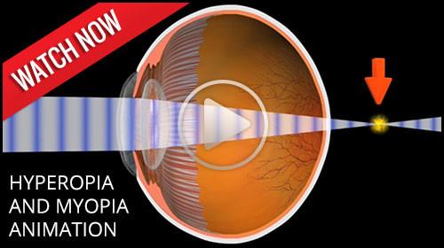 Hyperopia and Myopia animation