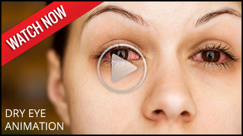 Dry Eye Syndrome  animation