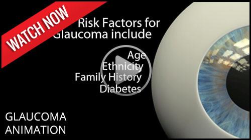 Glaucoma animation