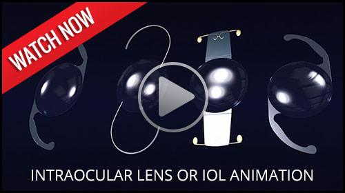 Intraocular lens or IOL