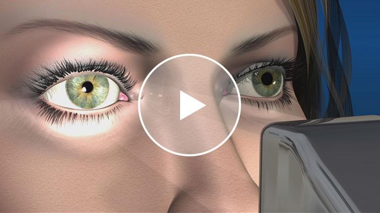 Dilation Exam Animation