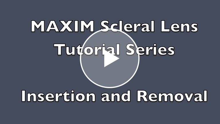 AccuLens Maxim Scleral Lens Tutorial Insertion and Removal