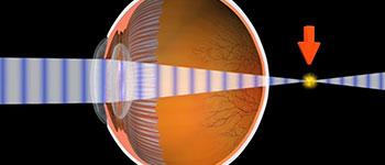Hyperopia Myopia