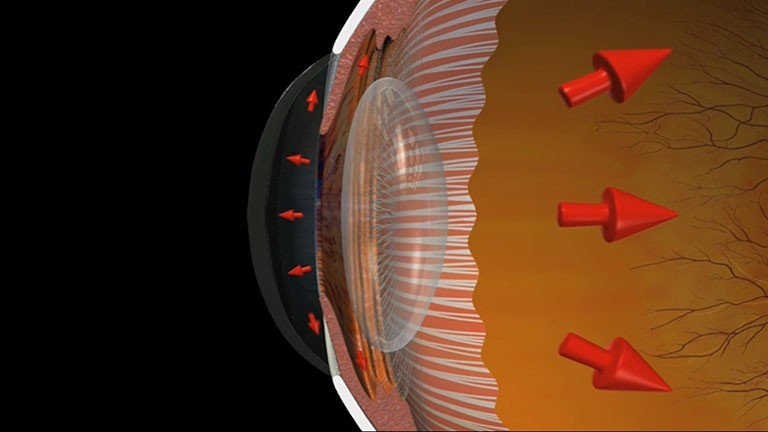 Glaucoma - Open Angle and Normal Tension