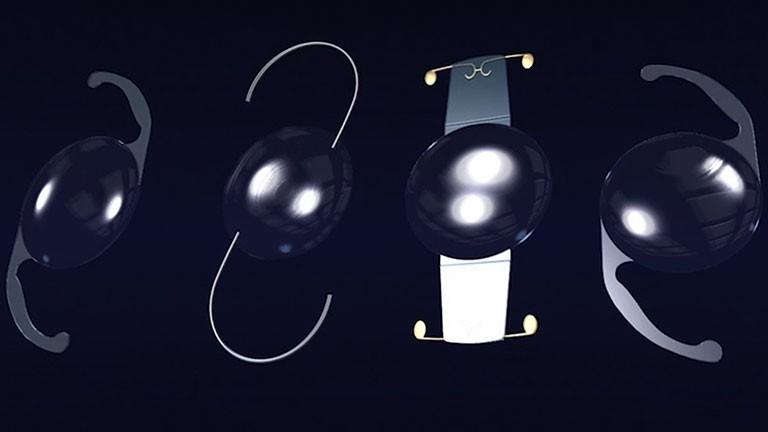 Intraocular lens (IOL)