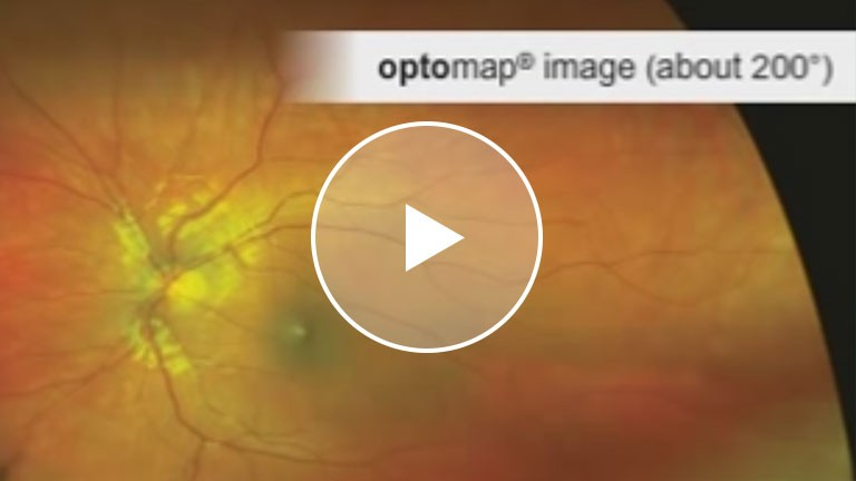 Optomap Comparison view of retinal exam