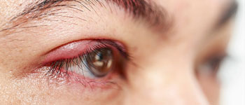 What can I do for my red and itchy eyelids?
