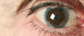 Do I really need cataract surgery?