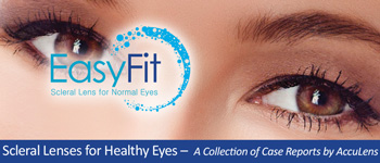 Scleral Lenses for Healthy Eyes Case #2