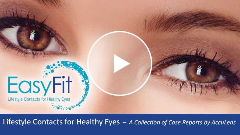 Scleral Lenses for Healthy Eyes Case #4