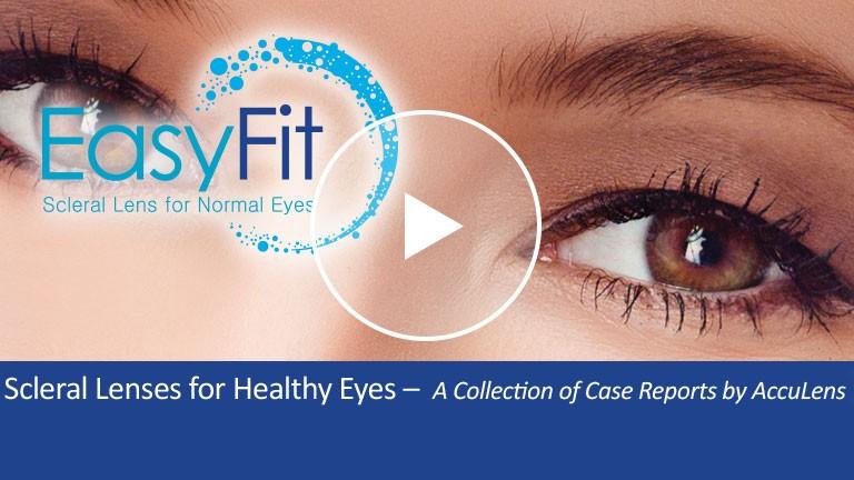 Scleral Lenses for Healthy Eyes Case #6