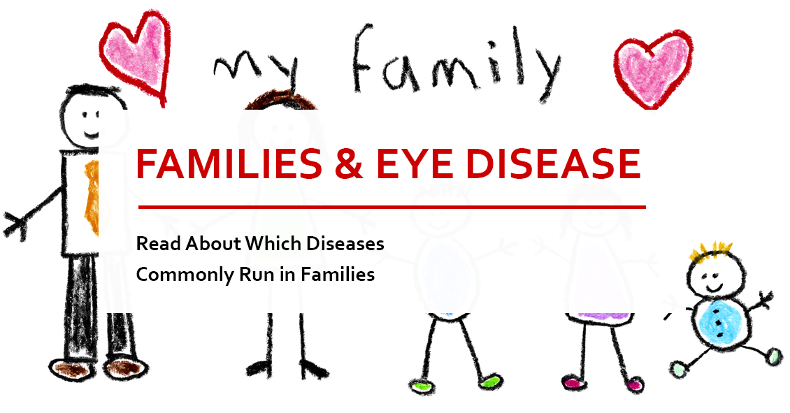 Which Eye Diseases Run In Families?