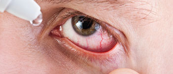 Is it safe to use redness relief eye drops