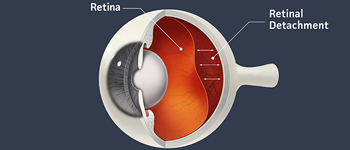 Retinal Detachment - Symptoms, Signs and Treatment