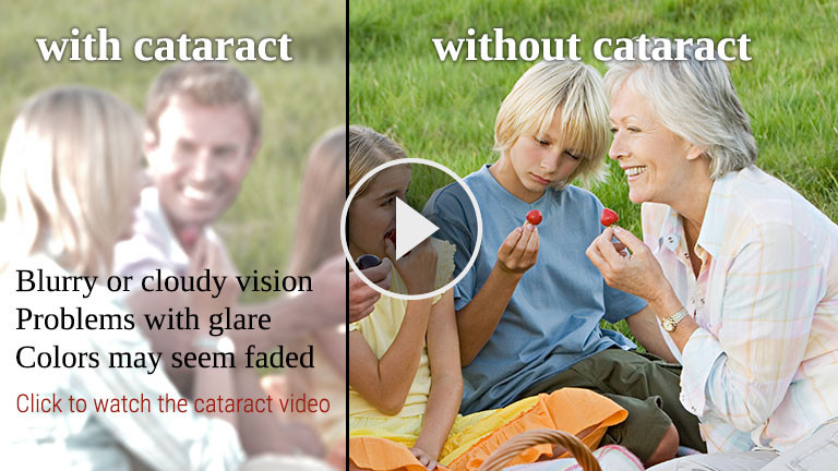Learn how cataracts affect your vision
