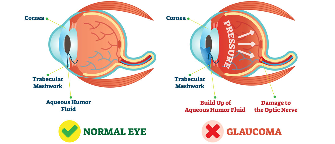 Newly Diagnosed with Glaucoma? Here are some treatment options.