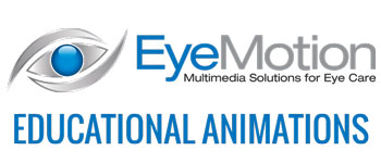 EyeMotion Animations