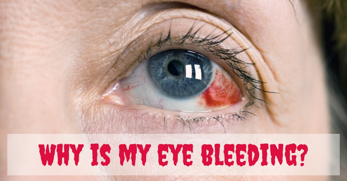 Is My Eye Bleeding?