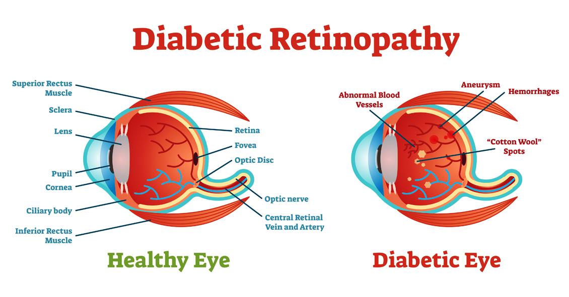Diabetic Retinopathy Basics